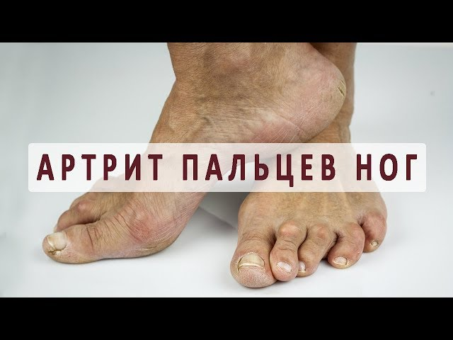 Артрит плюснефаланговых суставов стопы упражнения для суставов плечевого пояса