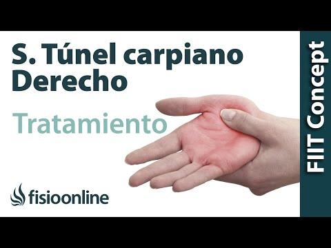 Carpiano tratamiento sindrome electroterapia con tunel del