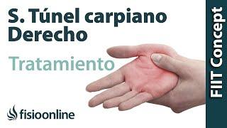 Tratamiento del síndrome de túnel carpiano derecho thumbnail