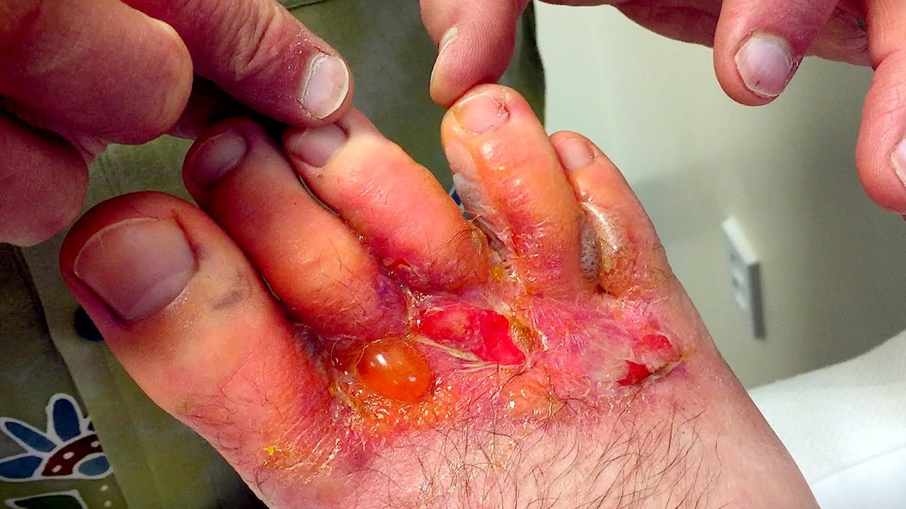 Hand, Foot, and Mouth Disease Symptoms & HFMD Pictures