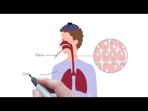 grippe symptômes de la grippe saisonnière grippe