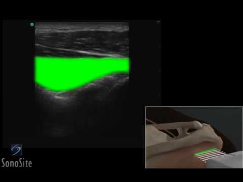 3D How To: Ultrasound Exam of the Posterior Groove of the Shoulder - SonoSite Ultrasound thumbnail