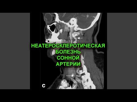 Неатеросклеротическая болезнь сонной артерии