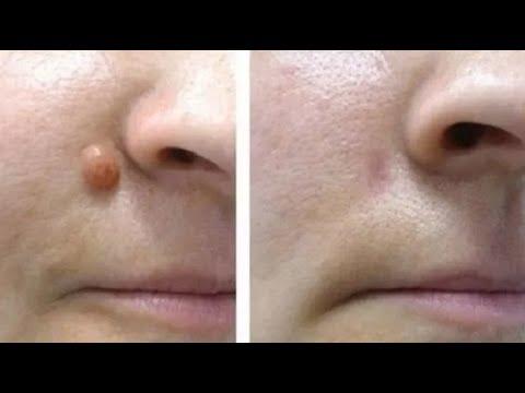 Como Eliminar Verrugas En 15 Minutos Usando Un Sólo Ingrediente