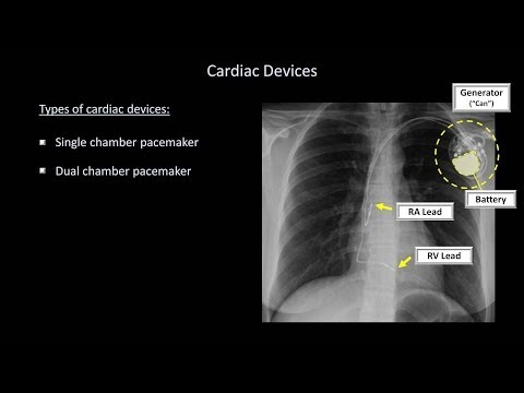 How to Interpret a Chest X-Ray (Lesson 9 - Atelectasis, Line