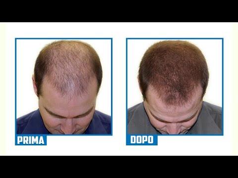 guida-completa:-il-segreto-per-fermare-la-caduta-dei-capelli-e-farli-ricrescere,-mai-più-pelati!