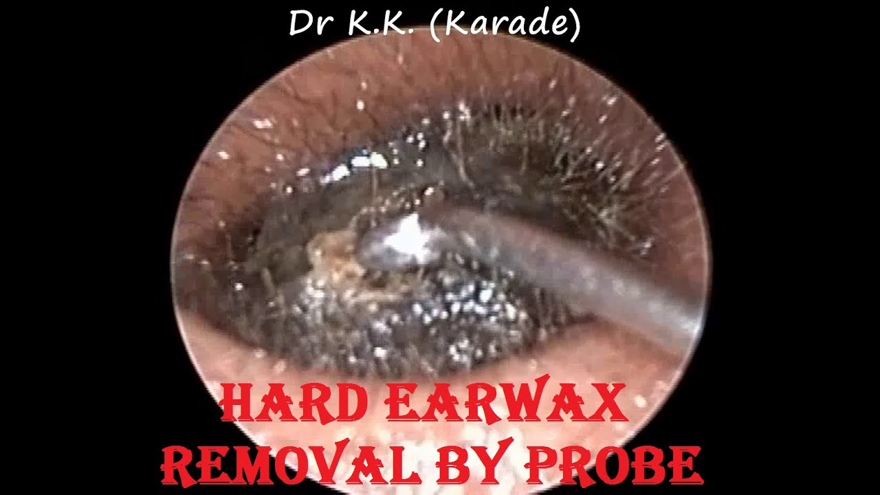 how to clear hard ear wax