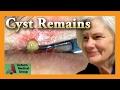 Leftover Cyst | Auburn Medical Group
