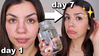 I Drank A Gallon Of Water A Day For One Week | Before And After Results