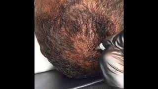 Microblading on the scalp