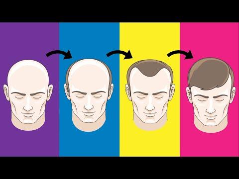 Top 5 Hair