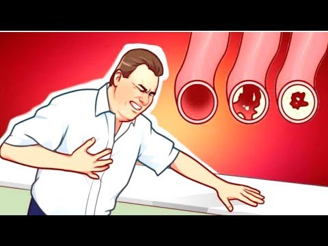 These Foods Clean Your Arteries & Can Prevent A Heart Attack Naturally