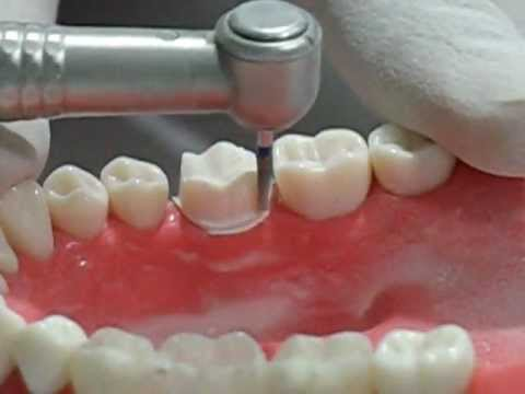 Aqeel Reshamvala Molar Crown Preparation Youtube