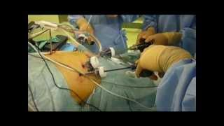 腹腔鏡手術
