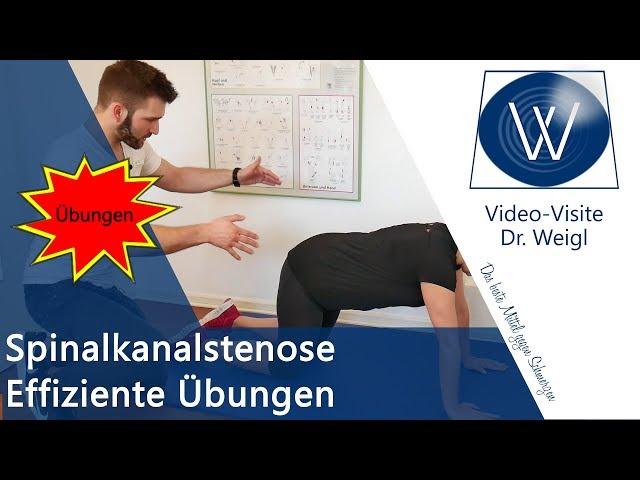 Richtige Hilfe 💡bei Rückenschmerzen durch Spinalkanalstenose ⚡ Die richtigen Übungen für zu Hause ✅