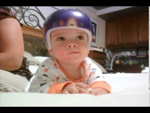 Plagiocephaly Treatment-Helmet -Dr. Peter Sun-Neurosurgeon ...