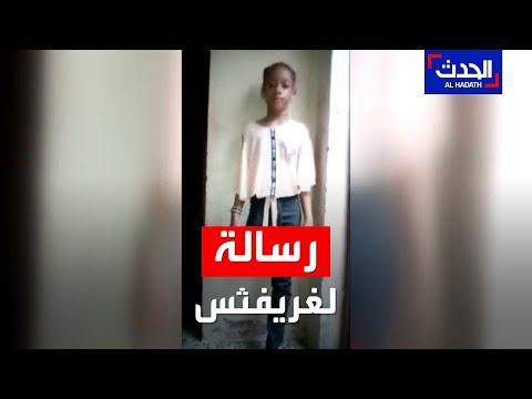 طفلة يمنية مبتورة الساق توجه رسالة مؤثّرة لغريفثس