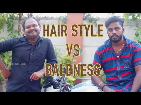 Benefits of Baldness | Hairstyle Vs Baldness Atrocities | Sotta mandai