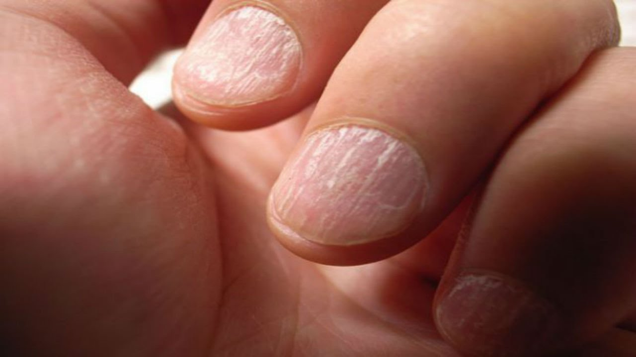 NAILS AND HEALTH INDICATORS - YouTube