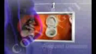 Ectopic Pregnancy signs & symptoms