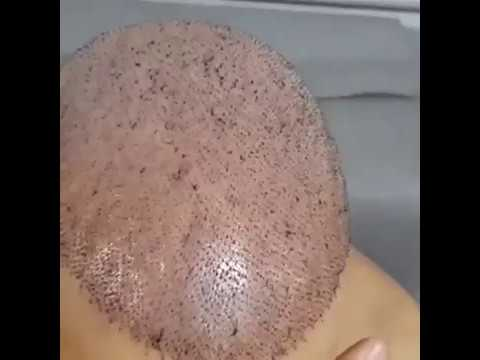 America U.S.A Hair Clinic Transplant