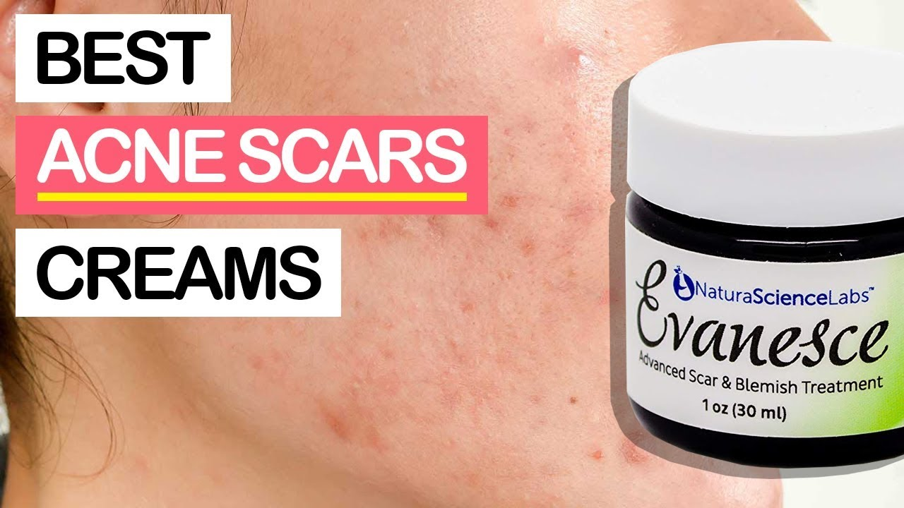 10 Best Acne Scars Removal Creams 2019 For All Pimple Marks Scars Youtube