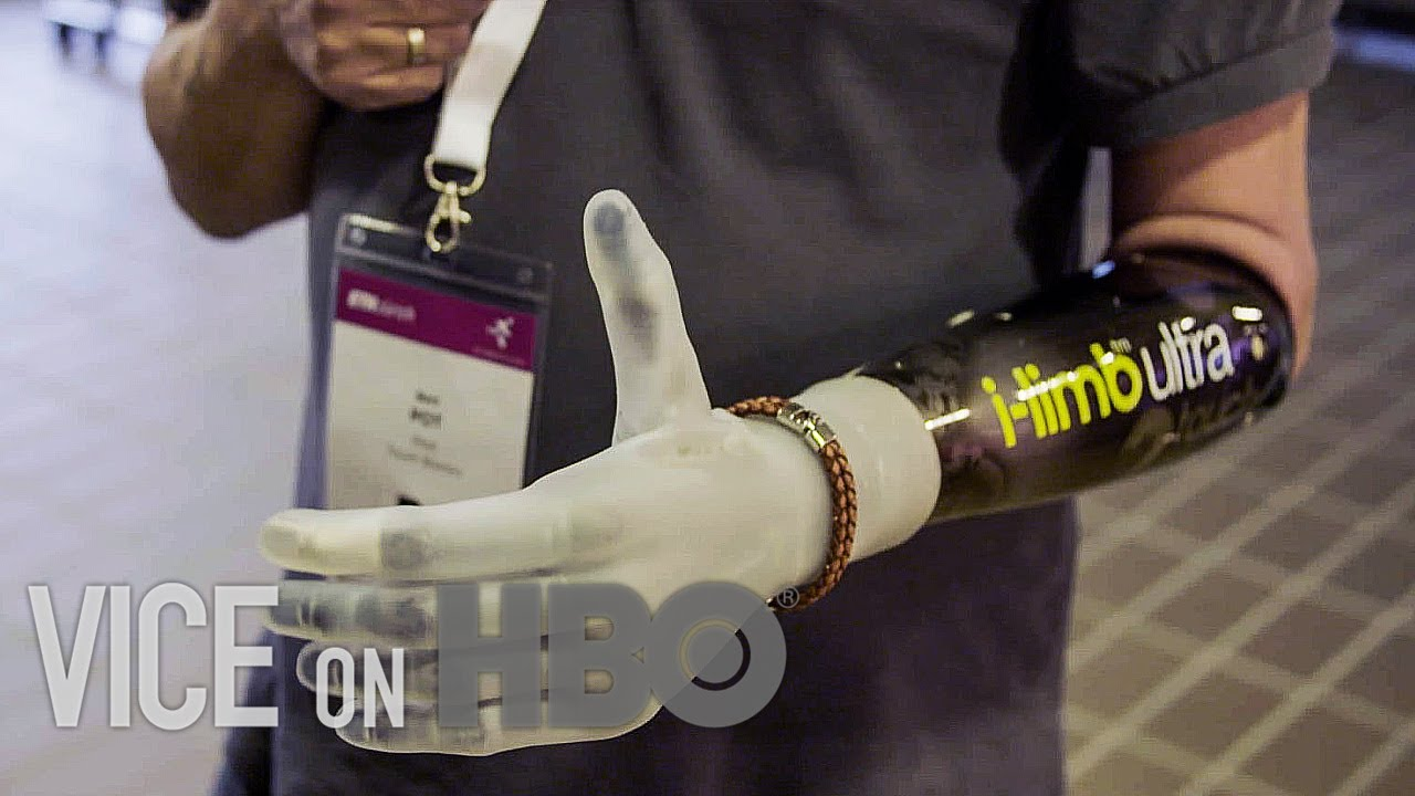 How Bionic Limbs Are Changing Lives | VICE on HBO
