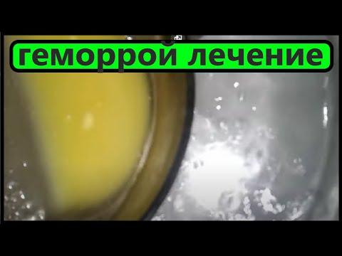 ЛЕЧЕНИЕ ГЕМОРРОЯ  - ПОТРЯСАЮЩИЙ ЭФФЕКТ.