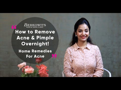 How to Remove Pimples & Acne Overnight | Acne Treatment