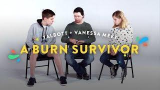 Kids Meet A Burn Survivor (Talbott & Vanessa) | Kids Meet | HiHo Kids