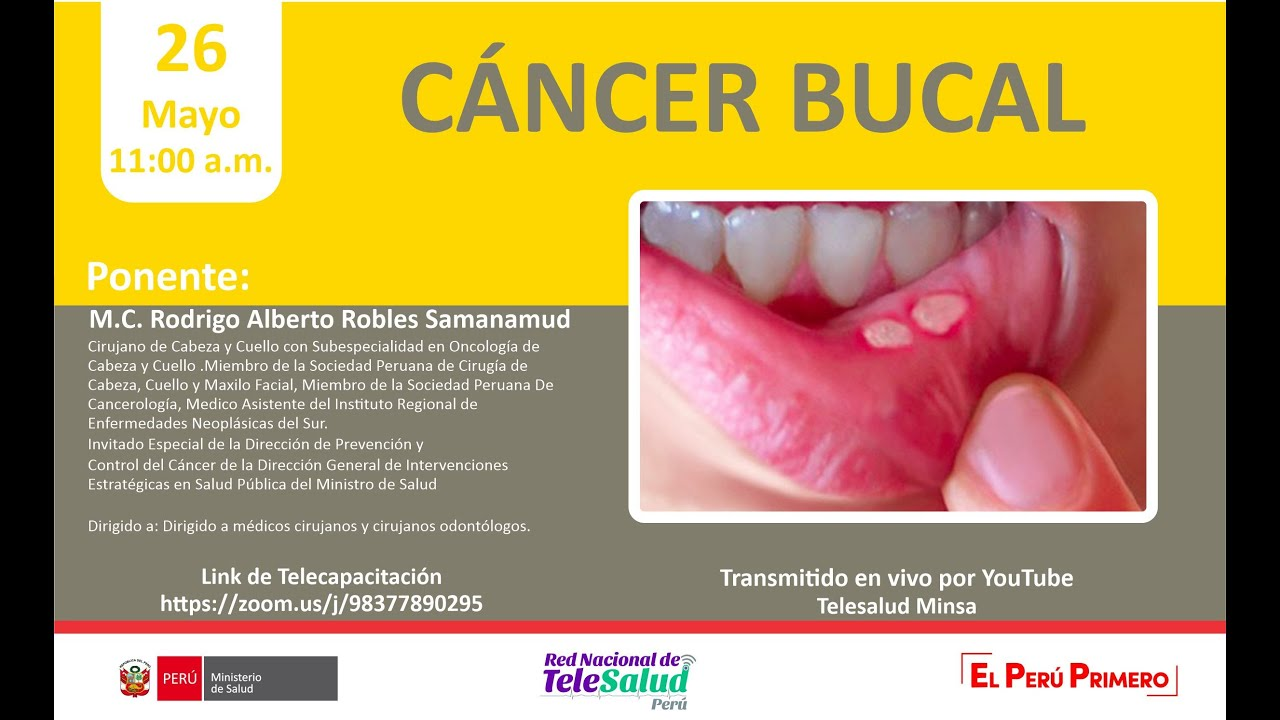 cancer bucal prezi