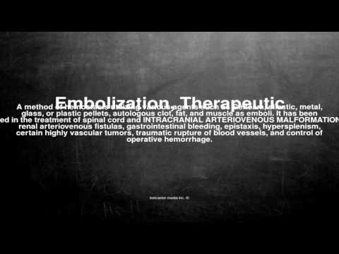 Medical vocabulary: What does Embolization, Therapeutic mean