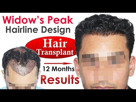 New Hair Transplant Widows's Peak Hairline Design at Medispa