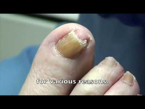 Biggest Curved Toenail!  Removal & Treatment – Dr. Nail Nipper 👍👍👍👍