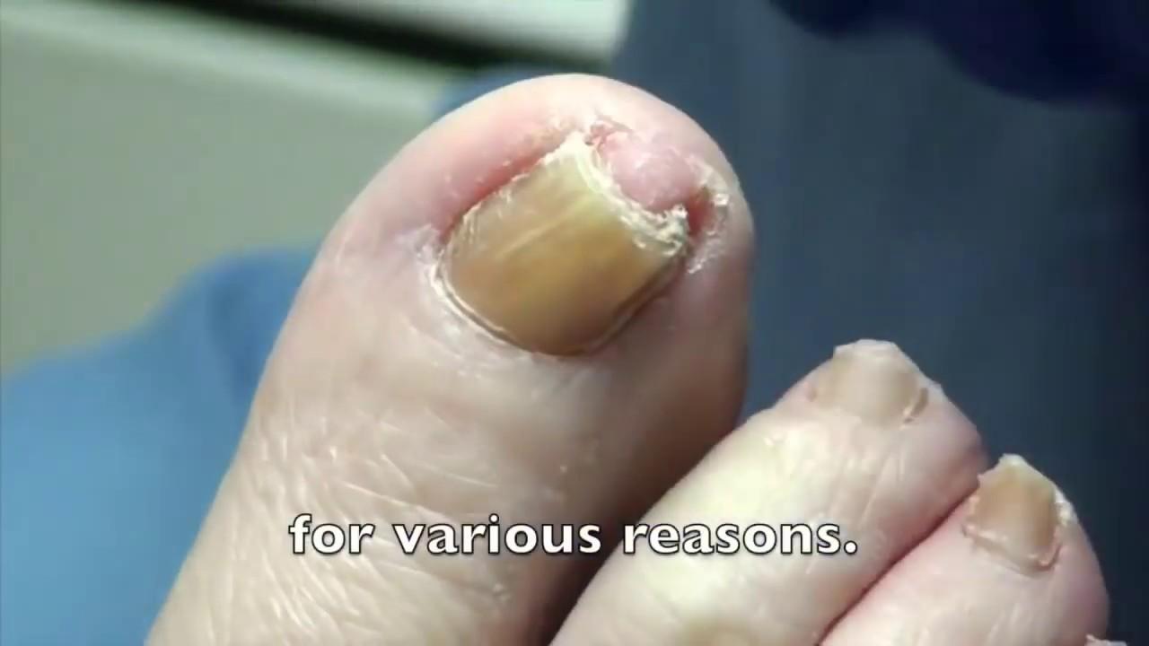 Biggest Curved Toenail! Removal & Treatment - Dr. Nail Nipper ...