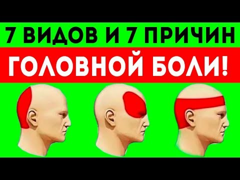 Схема головных болей