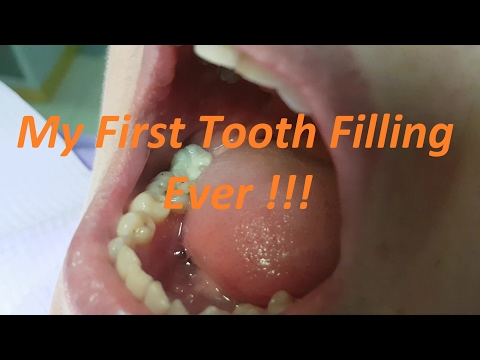 Dentist Student Do Their Very First Dental Filling !!!