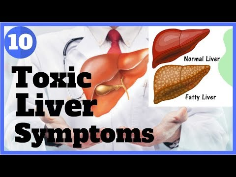 10 WARNING SIGNS YOUR LIVER IS FULL OF TOXINS ✔