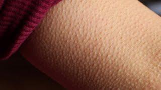 Cutânea as pernas erupção após barbear