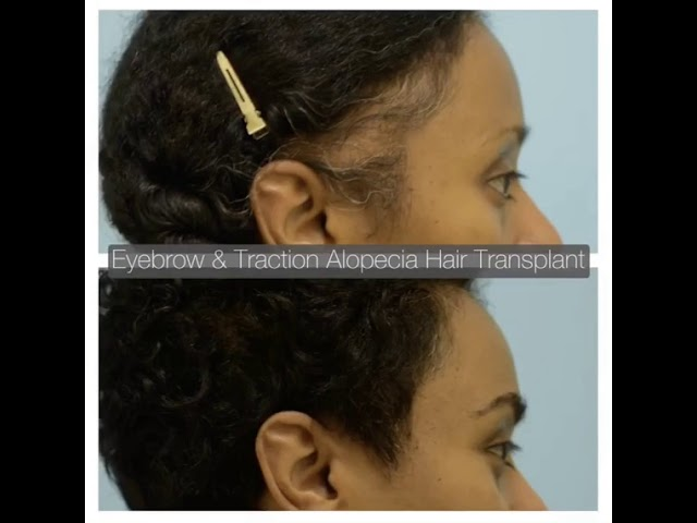 Dallas Eyebrow Hair Transplant and Hairline Transplant for Traction Alopecia