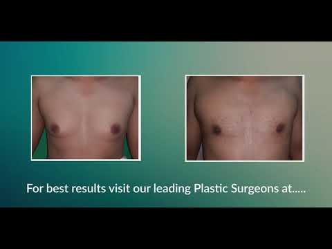 Scarless Male Breast Reduction Surgery by our plastic surgeons
