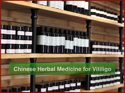 Holistic Treatment of Vitiligo with Chinese Herbs