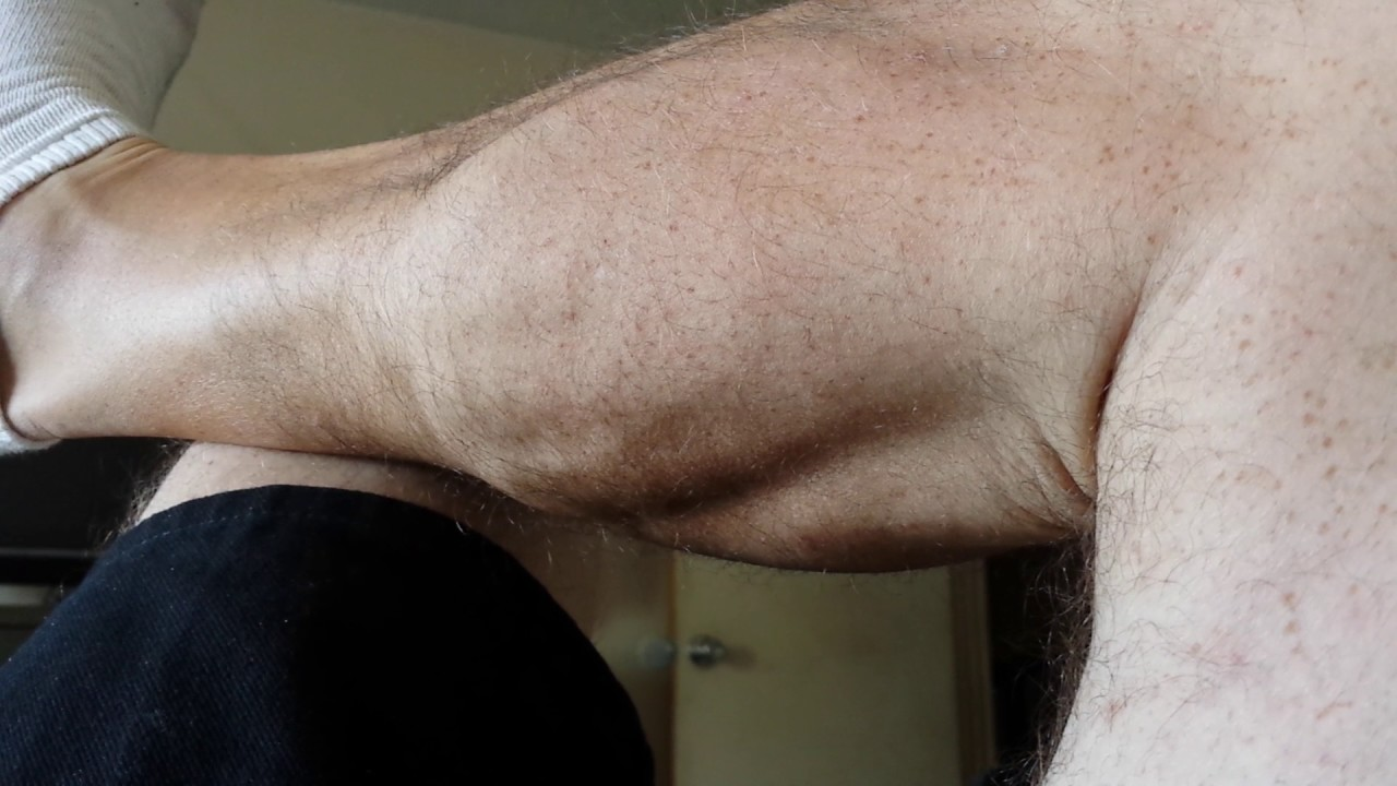 Muscle spasm from l5 s1 nerve damage  - YouTube