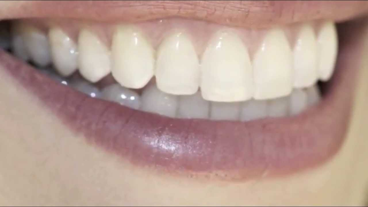 Removible dental cuesta una cuanto protesis