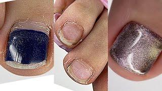 Педикюр на себе 💅 Ужасно запущенные ногти 🙁 Как сделать блик на весь ноготь
