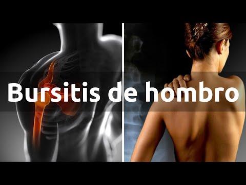 La bursitis de hombro - Qué es, síntomas y tratamiento