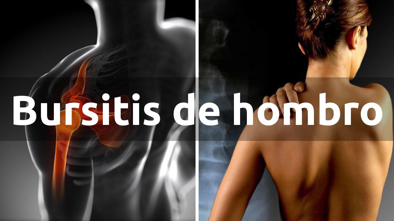 La bursitis de hombro qu es s ntomas y tratamiento Notas de espectaculos mas recientes