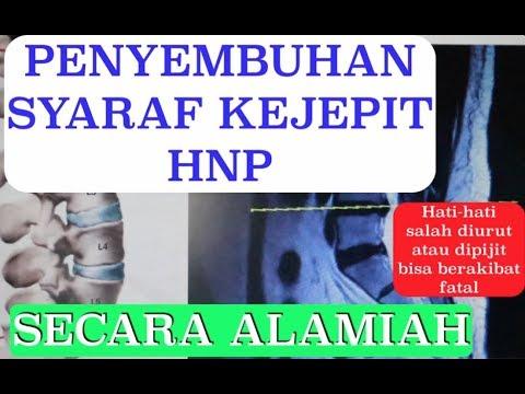 PENYEMBUHAN SYARAF KEJEPIT / HNP SECARA ALAMIAH