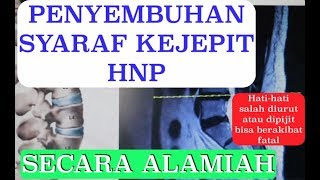 Atasi HNP dengan Laser PLDD [Hanya 15 Menit] ~-~~-~~~-~~-~-~-~~-~~~-~~-~-~ Lamina Pain & Spine Cente.