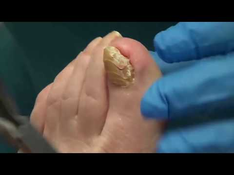 world's-thickest-nails!-all-star-doctors-with-dr.-nail-nipper-(toenail-tuesday)